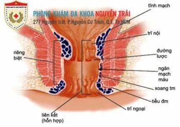 phuong-phap-giup-giam-sung-dau-bui-tri-1